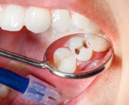 深い虫歯で痛みがある場合