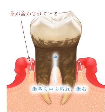 歯周病になった歯
